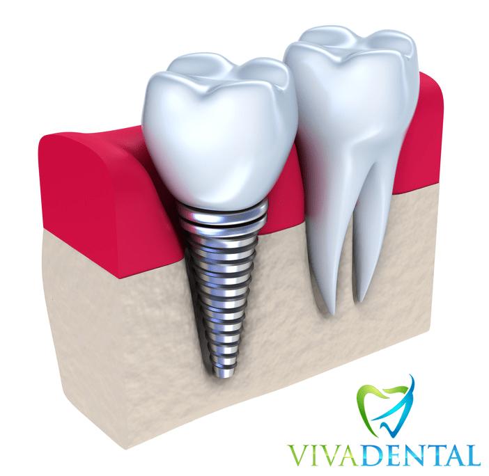 Zahnimplantate von Viva Dental