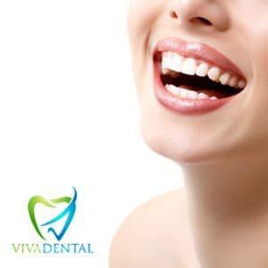 Viva Dental Piercings